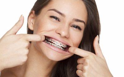 Consejos para elegir el mejor sistema de ortodoncia para un adulto