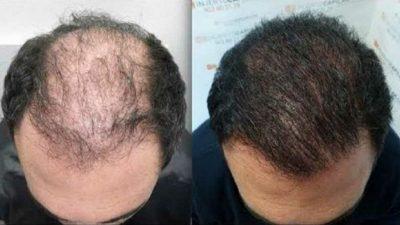 Transplante de pelo Turquía