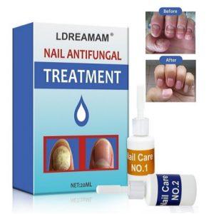 Tratamiento para los hongos en las uñas LDreamAM